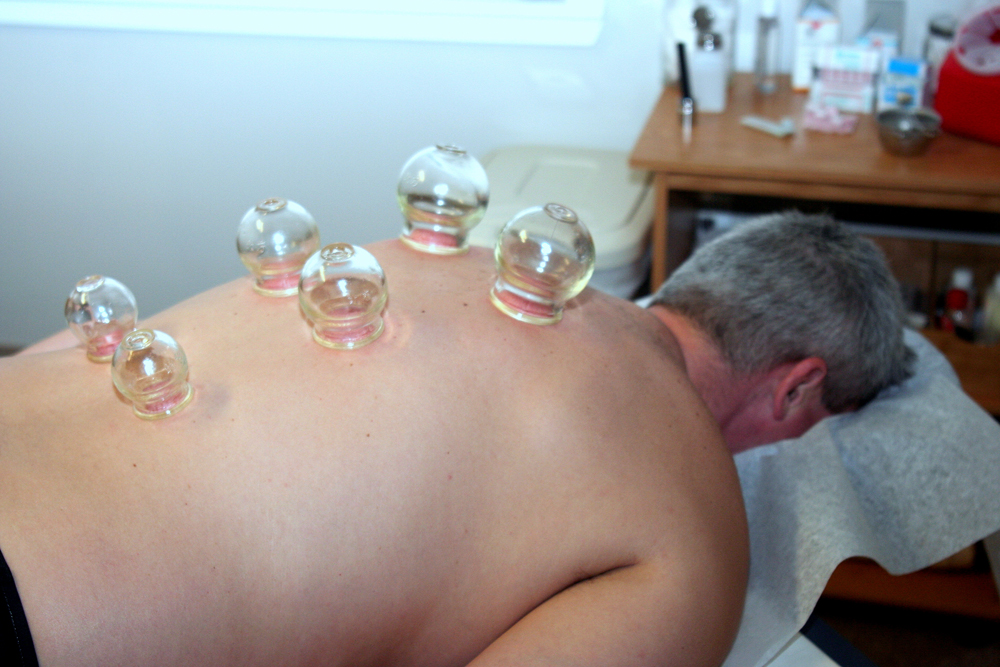 Senior aged man receiving cupping treatment