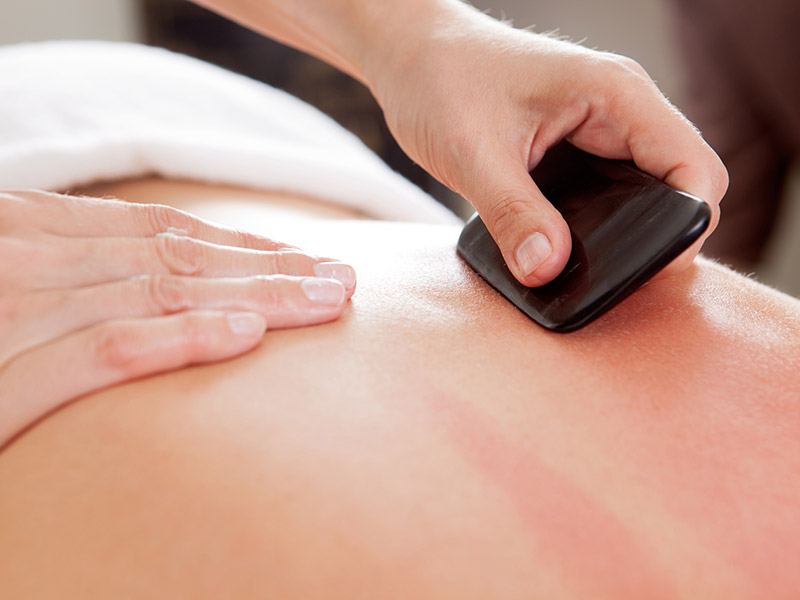 A woman receiving Gua Sha treatment